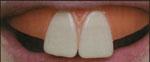 Bunny Clown Teeth